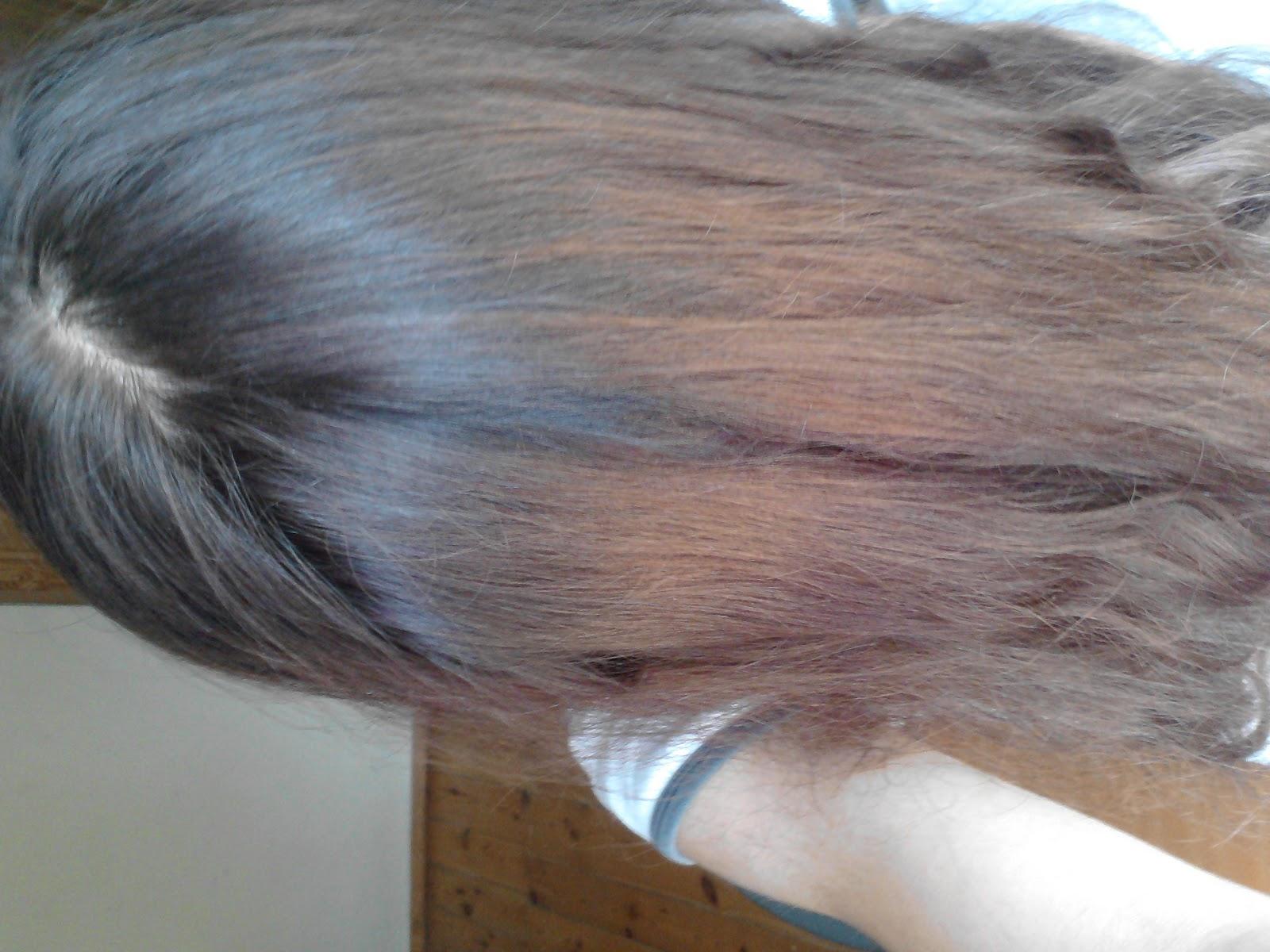 zabieg na wypadające włosy